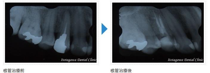 一般歯科症例