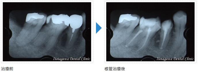 歯科一般 側枝