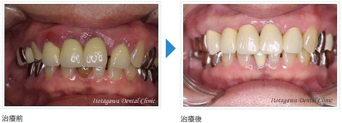 歯科一般 歯周病治療